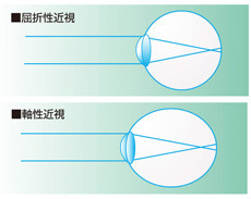 learn_eyes_shortsight.jpg